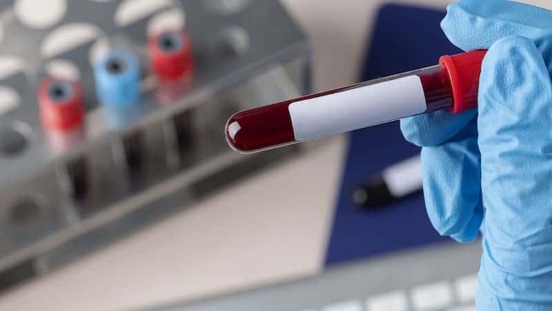 regular blood tests - re-test with ElevateMe